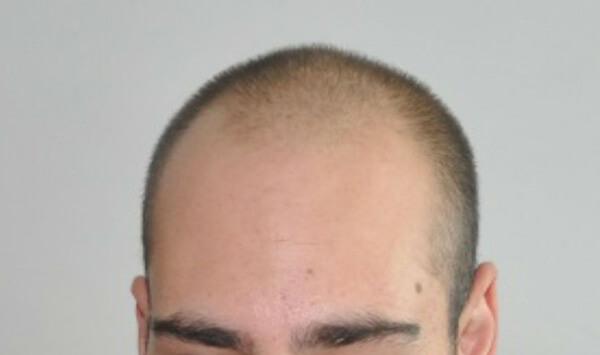 Before-Присаждане на коса