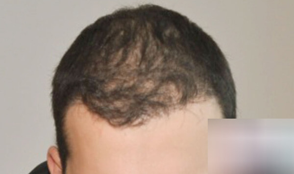 After-Присаждане на коса